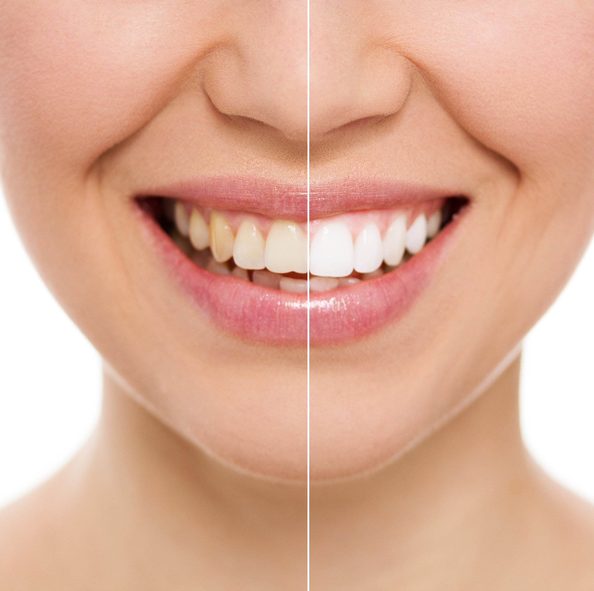What are the benefits of Cosmetic Dentistry in Boynton Beach?