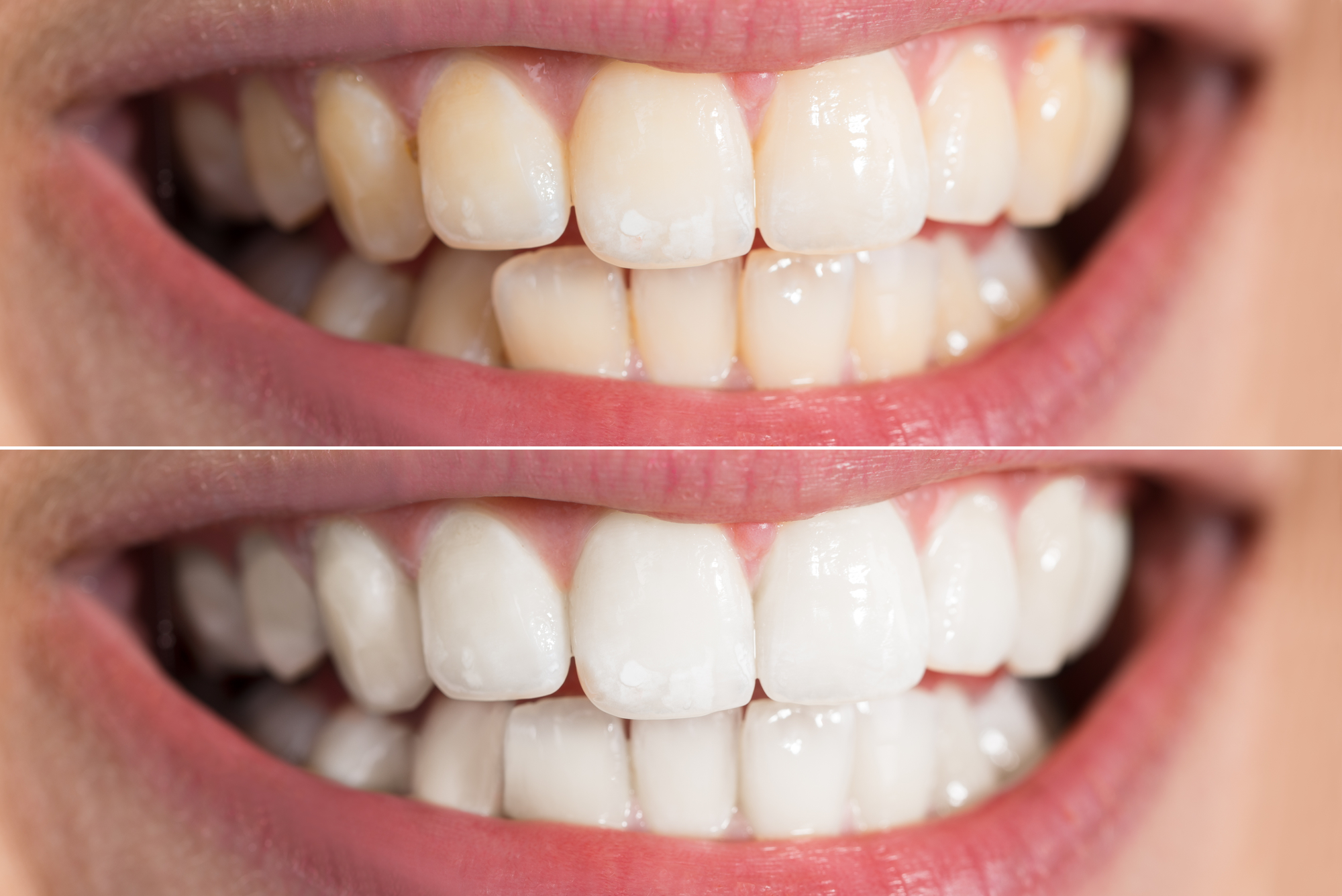 What are the benefits of teeth whitening in Boynton Beach?