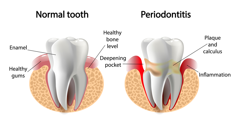 Do I need to see a periodontist in Boynton Beach?