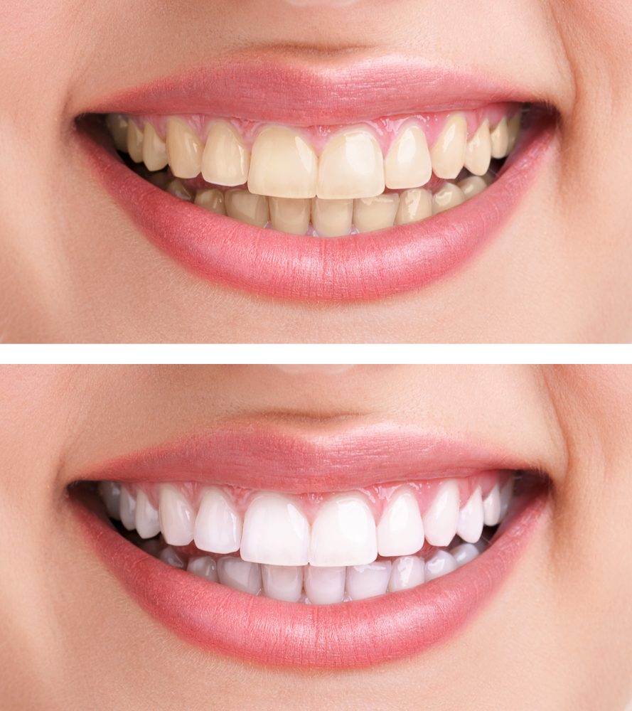 Who does teeth whitening in Boynton Beach?