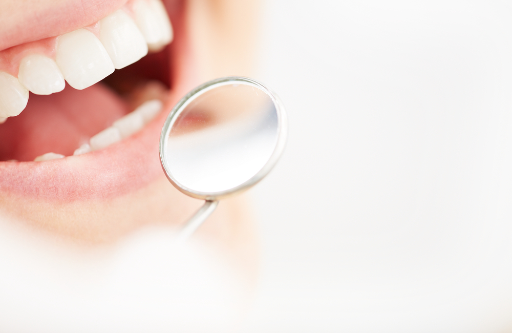 what are dental sealants from the best dentist in boynton beach?